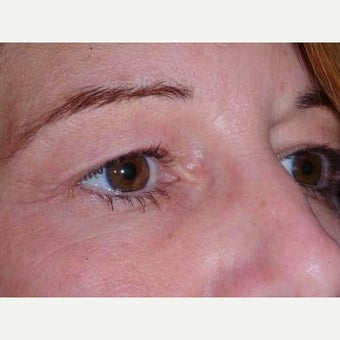 35-44 year old woman treated with Eyelid Surgery before 2197889