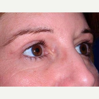 35-44 year old woman treated with Eyelid Surgery after 2197889