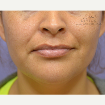 25-34 year old woman treated with Lip Augmentation before 3392025