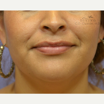 25-34 year old woman treated with Lip Augmentation after 3392025