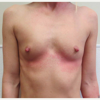 Anatomically Shaped Breast Implants for this 35 Year Old Woman before 2985386