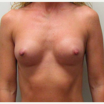 Anatomically Shaped Breast Implants for this 35 Year Old Woman after 2985386
