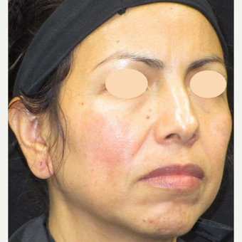 45-54 year old woman treated with Age Spots Treatment after 3152761