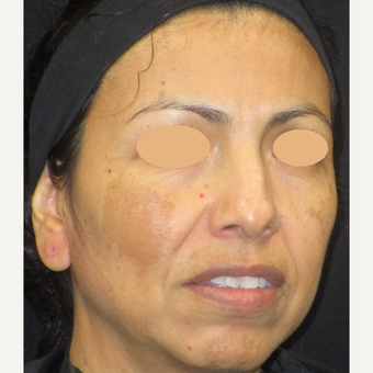 45-54 year old woman treated with Age Spots Treatment before 3152761