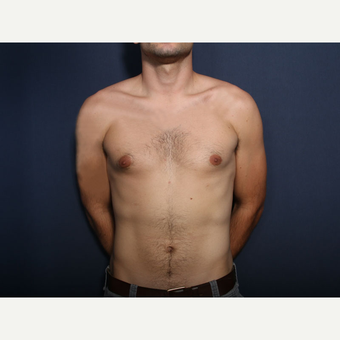 25-34 year old man treated with Male Breast Reduction before 3658759