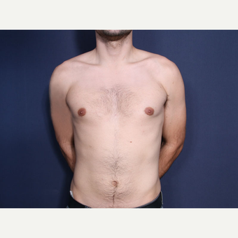 25-34 year old man treated with Male Breast Reduction after 3658759