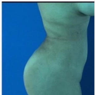 35-44 year old woman treated with Liposuction