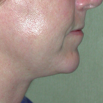 35-44 year old woman treated with Chin Implant after 3030480
