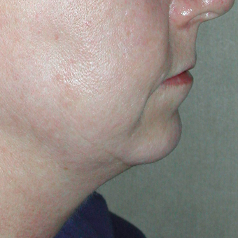 35-44 year old woman treated with Chin Implant before 3030480