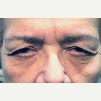 65-74 year old woman treated with Blapharoplasty Eyelid Surgery before 3180182