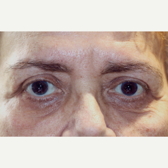 65-74 year old woman treated with Blapharoplasty Eyelid Surgery after 3180182