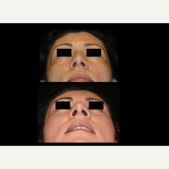 25-34 year old woman treated with Rhinoplasty before 3680398
