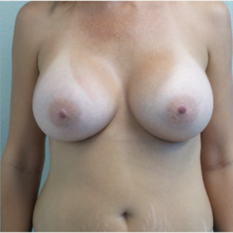 41 year old woman treated with Breast Augmentation - 650 cc high profile silicone gel implants after 3432340
