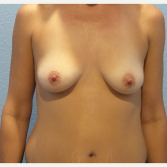 41 year old woman treated with Breast Augmentation - 650 cc high profile silicone gel implants before 3432340