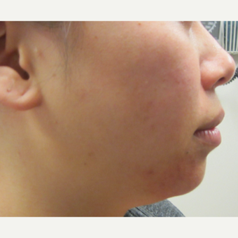 28 year old woman treated with Perlane in chin before 3121319