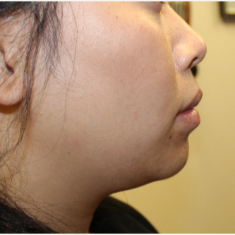 28 year old woman treated with Perlane in chin after 3121319