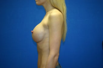26 Year Old Female - Breast Augmentation via Keller Funnel AA to DD 1116730