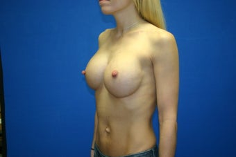 26 Year Old Female - Breast Augmentation via Keller Funnel AA to DD after 1116730