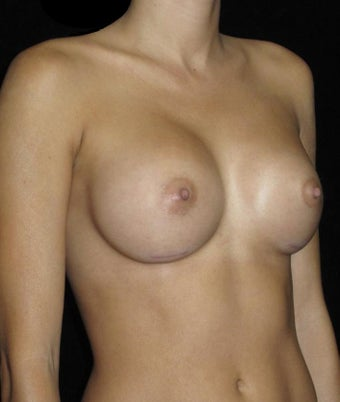 30 year old woman treated with Breast Augmentation 3802738