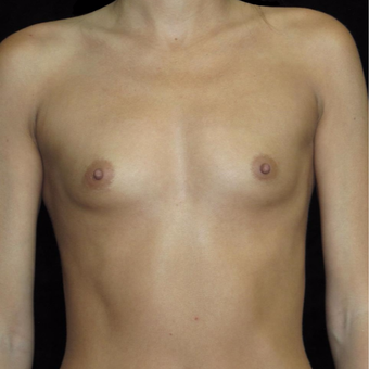 30 year old woman treated with Breast Augmentation before 3802738