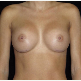 30 year old woman treated with Breast Augmentation after 3802738