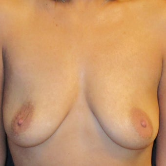 Breast Augmentation before 1419121