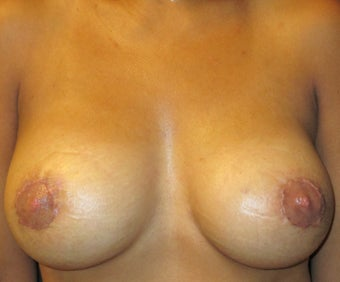 Breast Augmentation after 1419121