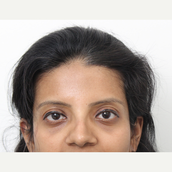 25-34 year old woman treated with Rhinoplasty after 3424447