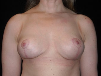 Breast implant removal and breast lift in 39 year old after 955382