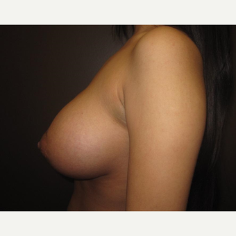 18-24 year old woman treated with Breast Augmentation after 3320996