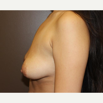 18-24 year old woman treated with Breast Augmentation before 3320996