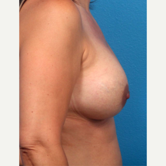 35-44 year old woman treated with Breast Augmentation after 3366922