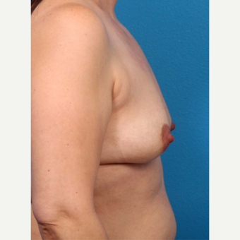 35-44 year old woman treated with Breast Augmentation before 3366922