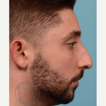 25-34 year old man treated with open Septoplasty/revision rhinoplasty before 3108876