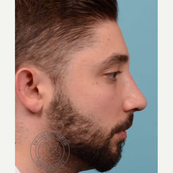 25-34 year old man treated with open Septoplasty/revision rhinoplasty after 3108876