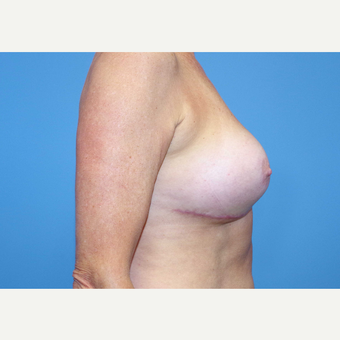 55-64 year old woman treated with Breast Implants after 3439951