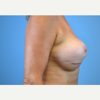 55-64 year old woman treated with Breast Implants before 3439951