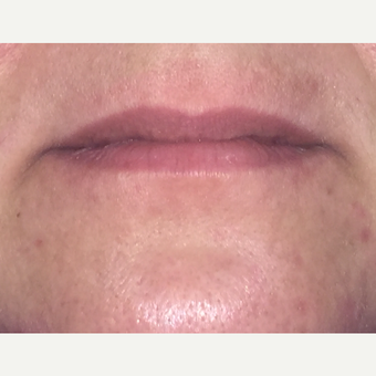 35-44 year old woman treated with Restylane Silk to lips before 2962393