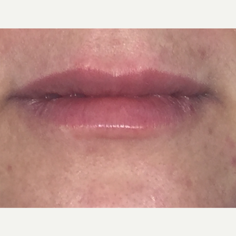 35-44 year old woman treated with Restylane Silk to lips after 2962393
