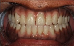 35-44 year old woman treated with Dental Implants after 3220827