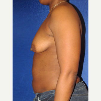 35-44 year old woman treated with Breast Augmentation before 3136088