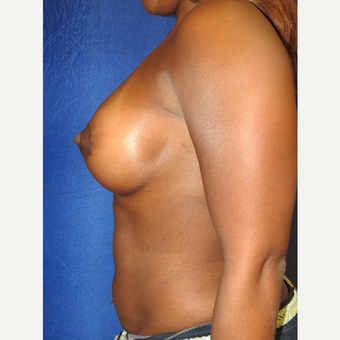35-44 year old woman treated with Breast Augmentation after 3136088