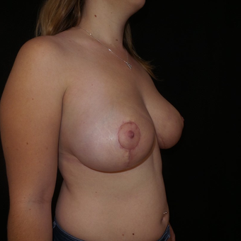 35-44 year old woman treated with Breast Reduction after 3566183
