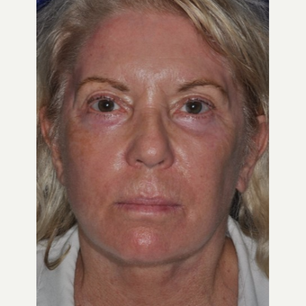 55-64 year old woman treated with Facelift after 3844137