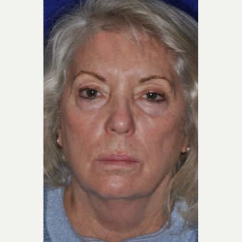 55-64 year old woman treated with Facelift before 3844137