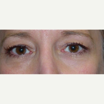 45-54 year old woman treated with cosmetic eyelid suregry before 1980425