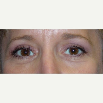 45-54 year old woman treated with cosmetic eyelid suregry after 1980425