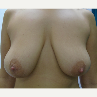 25-34 year old woman treated with Breast Lift with Implants before 3833088