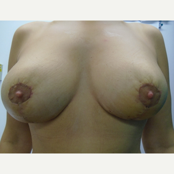 25-34 year old woman treated with Breast Lift with Implants after 3833088