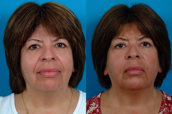51-year-old woman treated with Restylane™. before 574581